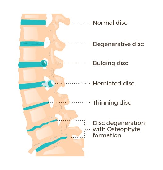 Graphic: illustrating the difference between disc herniation and degenerative arthritis
